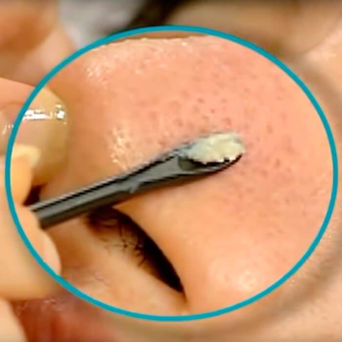 Набор палочек для очистки пор Ciracle Black Cotton Sebum Removing Swab