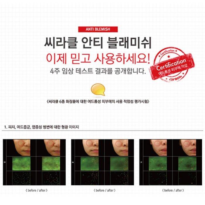 Точечное средство Ciracle Anti-Blemish Spot A-Sol