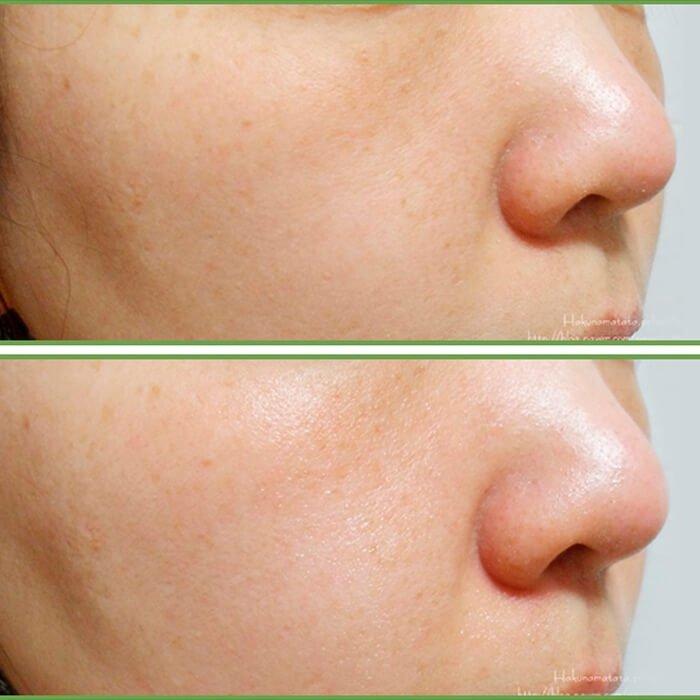 Сыворотка для лица Elizavecca Centella Asiatica Serum 100%